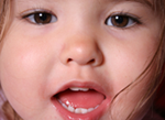 Child showing their baby teeth