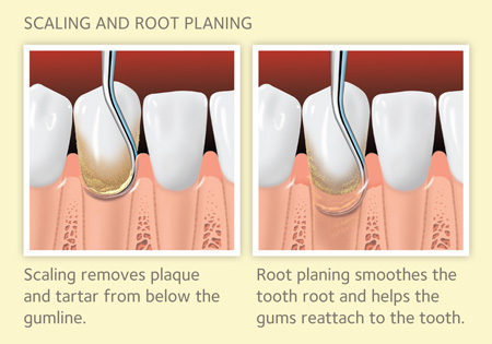 Graphic explaining scaling and root planing dental procedure