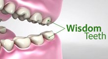 Diagram of wisdom teeth