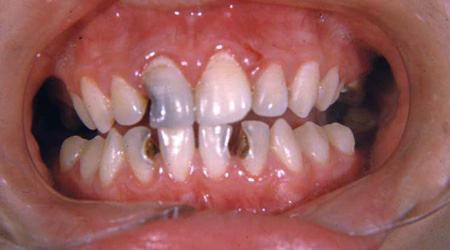Mouth Of Cavities 111