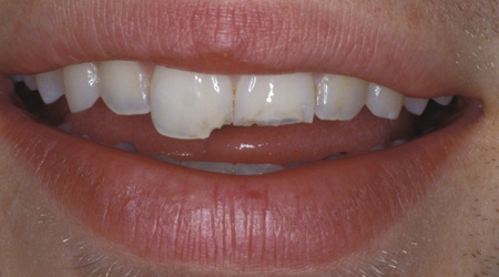 how to get rid of numb mouth after filling