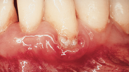 Bleeding gums, gingivitis