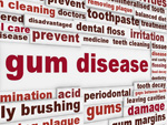 Thumbnail image of Gum Disease Photo illustration