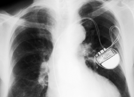 Chest x-ray showing a pacemaker