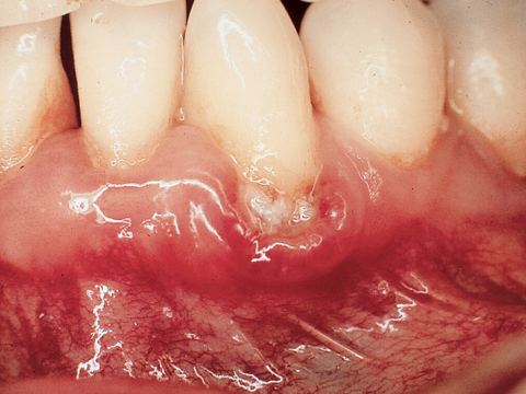 Photo of teeth and gum showing gum disease
