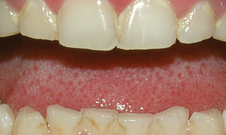 Pictures of Common Dental Problems - American Dental Association