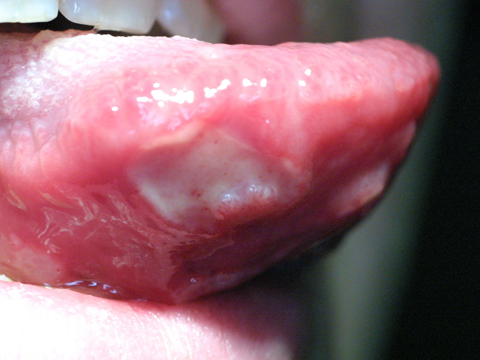 Photo of a sore on bottom of tongue