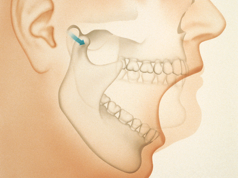 Diagram of jaw bone and joint