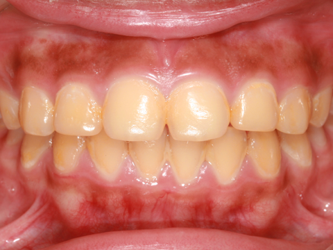 Photo of teeth stained yellow
